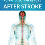 Left Side Paralysis vs. Right Side Paralysis After Stroke A Comprehensive Guide