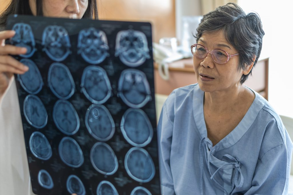 paralysis after stroke
